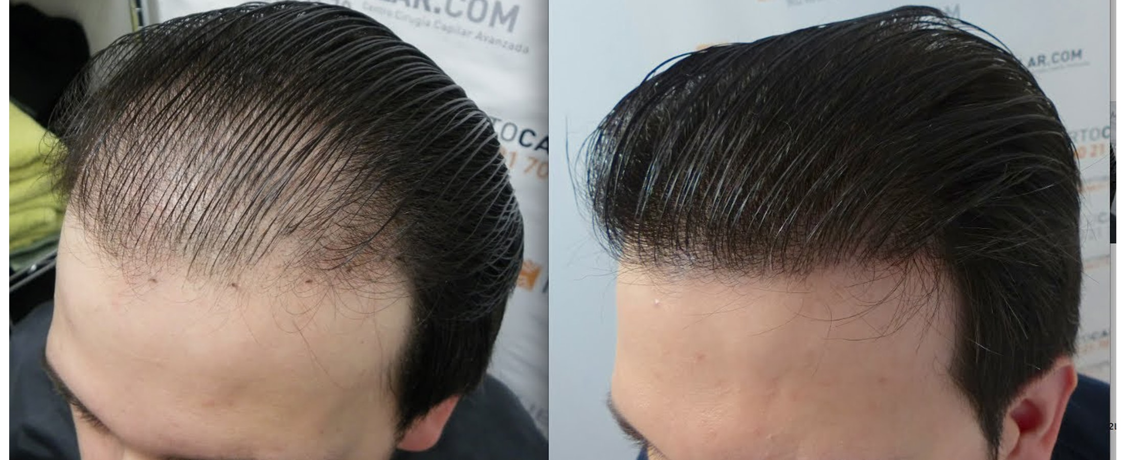 How Much Does Hair Transplant Cost Hair Transplant