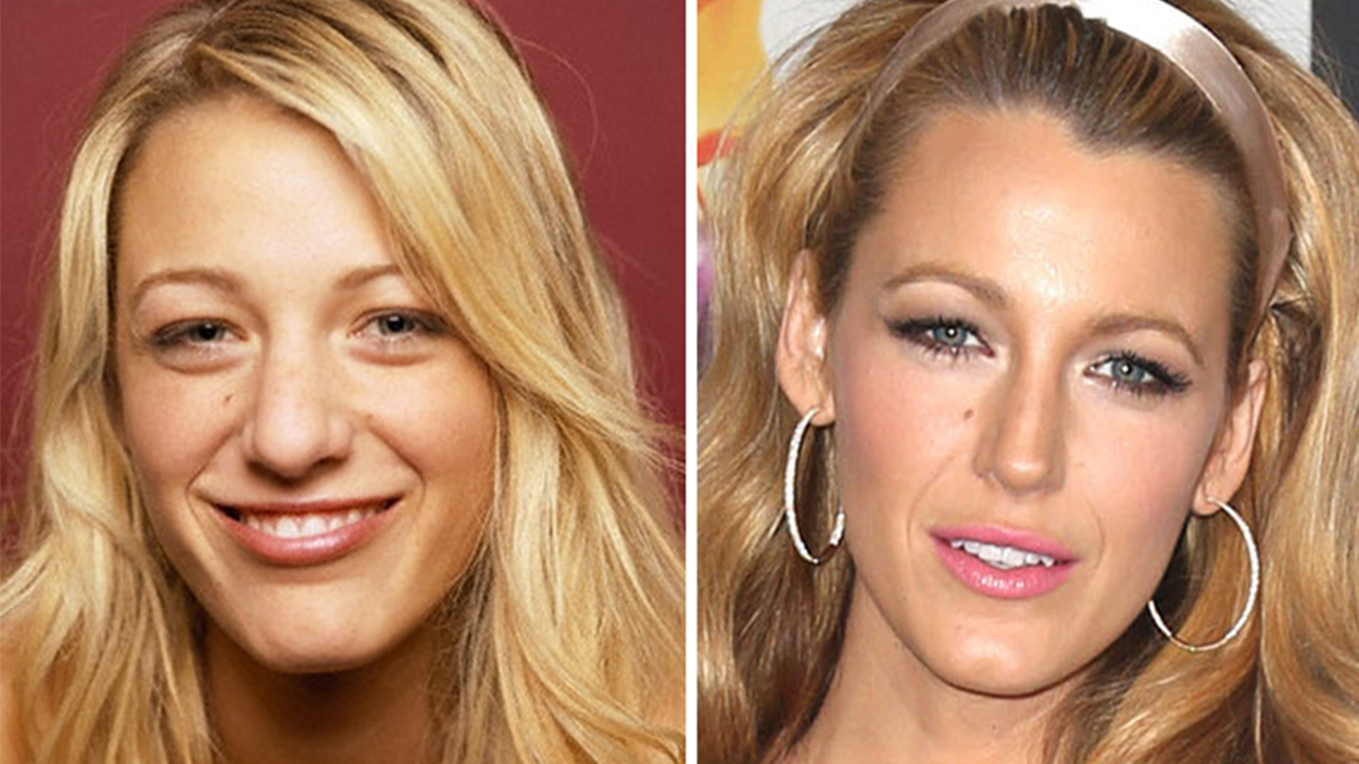 Best Nose Jobs for Celebrity - rhinoplastyonline.com
