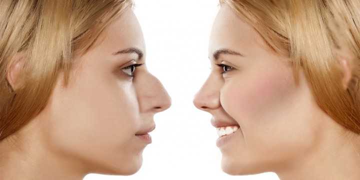 rhinoplasty-recovery-time