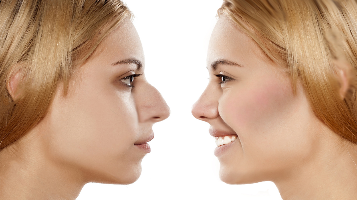 how to fix a big nose