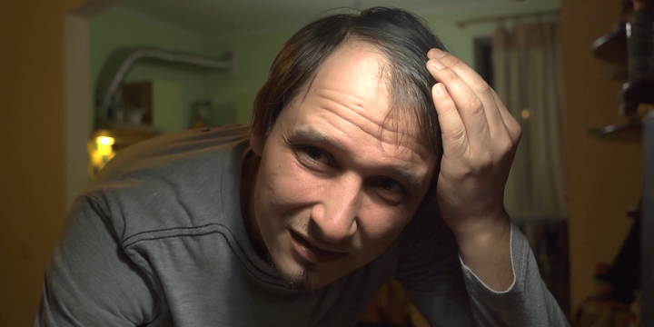 signs of baldness