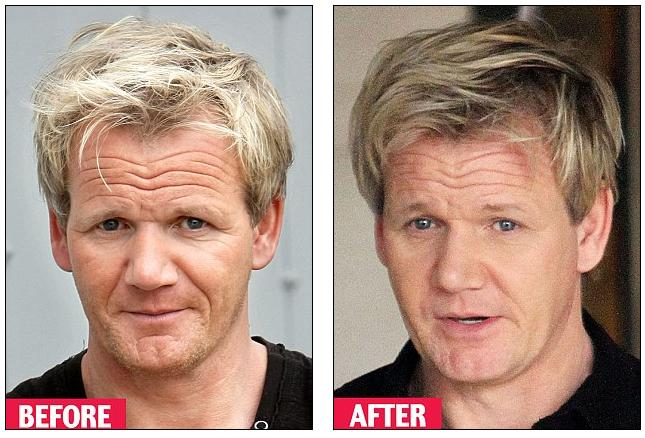 Hair transplant before and after celebrity tummy